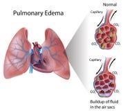 Edema pulmonar Imagens de Stock