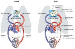 Edema pulmonar cardiogénico agudo Foto de Stock Royalty Free