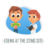 Edema at the sting site medical concept. Vector illustration. Royalty Free Stock Photography