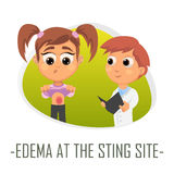Edema at the sting site medical concept. Vector illustration. Stock Photo