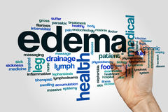Edema word cloud concept on grey background Royalty Free Stock Images