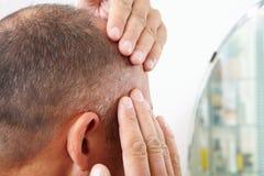 Edição do homem superior e da queda de cabelo imagem de stock royalty free