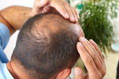 Edição do homem superior e da queda de cabelo fotografia de stock royalty free