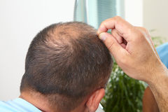 Edição do homem superior e da queda de cabelo fotos de stock royalty free