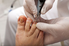 Edit toenail with grinder Royalty Free Stock Photos