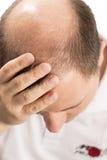 Edizione di perdita di capelli e dell'uomo senior Immagini Stock