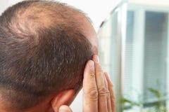 Edizione di perdita di capelli e dell'uomo senior immagine stock