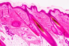Education anatomy and physiology of Human scalp show of hair folticles under the microscopic. Education anatomy and physiology of Human scalp show of hair royalty free stock photos