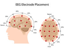 EEG electrode placement. 10-20 system method of EEG electrode placement Stock Photos