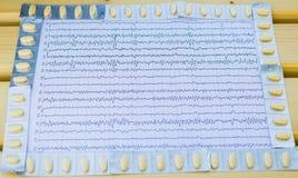 Neurological epilepsy review. EEG interpretation rezults after epilepsy with anticonvulsant medication royalty free stock photo