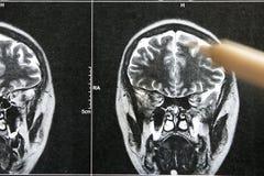 EEG x-ray skulls Royalty Free Stock Image