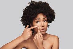 Een andere acne royalty-vrije stock afbeelding