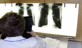 Een arts onderzoekt een röntgenstraal royalty-vrije stock afbeelding