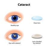 Een cataract is een betrekkende kristallijne lens Stock Afbeeldingen