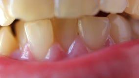 Een close-up van bochtige tanden stock footage