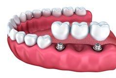 Een close-upmening van lagere tanden en tandimplants Stock Foto's