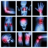 Een deel van de inzamelingsröntgenstraal van kind en veelvoudige verwonding stock afbeeldingen