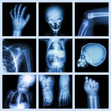 Een deel van de inzamelingsröntgenstraal van kindlichaam royalty-vrije stock fotografie