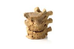 Een deel van menselijke stekel, backbone, op wit Royalty-vrije Stock Afbeeldingen