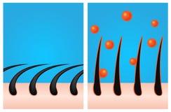 Een gel maakt zich haar bevinden/een veredelingsmiddel maakt haar sterk Royalty-vrije Stock Afbeeldingen