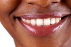 Een gezonde glimlach stock foto