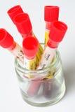 Een groep bloedonderzoekbuizen Stock Foto