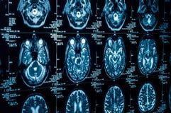 Een groep het aftasten van de KAT van de menselijke hersenen Royalty-vrije Stock Foto's