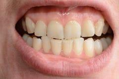 Een jonge vrouw toont haar bochtige tanden die medische hulp in close-ups nodig heeft royalty-vrije stock fotografie
