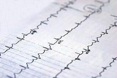 Een macrobeeld van de grafiek van het electrocardiogram Stock Foto's