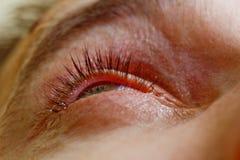 Een mens druipt open menselijk oog met heldere rode slagadersdalingen om visie dichte omhooggaand te verbeteren irritatie en rood stock afbeelding