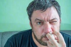 Een mens met een koude neus heelt royalty-vrije stock fotografie