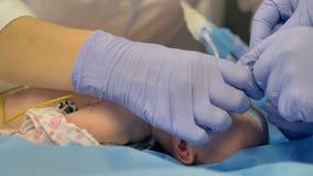 Een onbewuste zuigeling in dichte mening tijdens chirurgievoorbereiding stock video