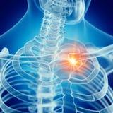 Een pijnlijk sleutelbeen vector illustratie