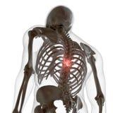 Een pijnlijke rug stock illustratie