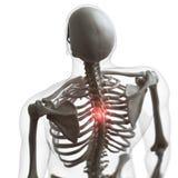 Een pijnlijke rug vector illustratie
