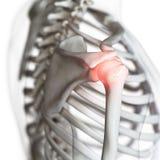 Een pijnlijke schouderverbinding vector illustratie