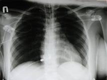 een röntgenstraal van een borst Stock Fotografie