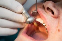 Een tandarts maakt tot tanden aan een vrouw royalty-vrije stock fotografie