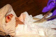 Een verpleegster met purpere plastic handschoenen snijdt een gietvormverband van een enkel met voet en tenen af die - selectieve  stock afbeeldingen