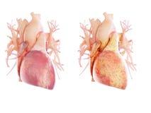 een vettig hart vector illustratie