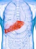 Een zieke lever stock illustratie