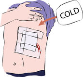 Eerste hulp - verband op lichaam met koude Stock Foto