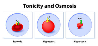 Effect of different solutions on blood cells. Isotonic, Hypotonic and Hypertonic solutions effects on animal cells. Tonicity and osmosis. This diagram shows the Royalty Free Stock Photo
