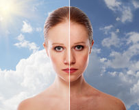 Effect of healing of skin, beauty woman