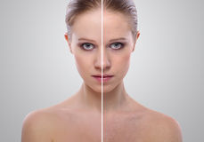 Effect of healing of skin, beauty young woman. Before and after the procedure on a gray background Stock Image