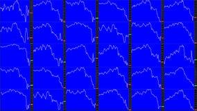 Effectenbeursgrafiek downtrend royalty-vrije stock afbeelding
