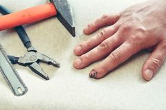 Effects of an accident at work. Wounded and stitched finger and tools royalty free stock photos