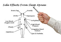 Effects of Sleep Apnea. Side Effects From Sleep Apnea stock image