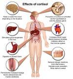 Effekte des Cortisols auf die menschliche medizinische Vektorillustration des Körpers 3d lokalisiert auf weißen Hintergrund vektor abbildung