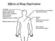 Effekte des Schlaf-Entzugs stock abbildung